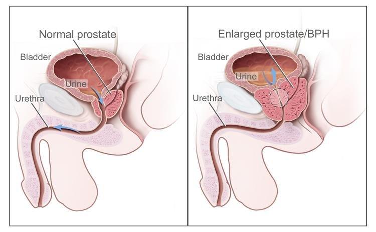 Hogyan ellenőrizze a prosztata ujját Ha beteg van a prosztatitisben
