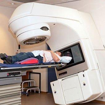 megmagyarázhatatlan fogyás mellkasröntgen